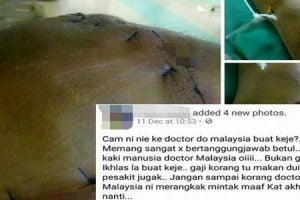 Wanita Dakwa Doktor Jahit Kaki Orang Macam Jahit Guni.jpg
